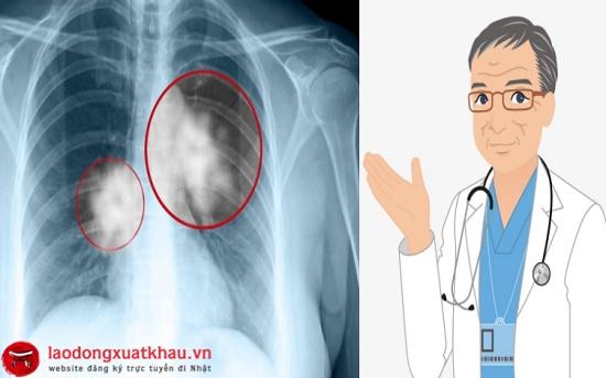 Mờ phổi, sẹo phổi có đi xuất khẩu lao động Nhật Bản được không?